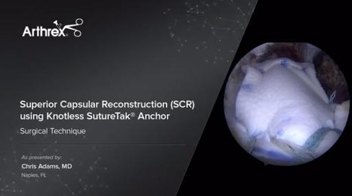SCR video