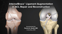 InternalBrace™ Ligament Augmentation in ACL Repair and Reconstruction