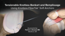 Tensionable Knotless Bankart and Remplissage Using Knotless FiberTak® Soft Anchors