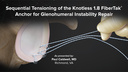Sequential Tensioning of the Knotless 1.8 FiberTak® Anchor for Glenohumeral Instability Repair
