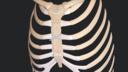 Median Sternotomy Closure With the FiberTape® Sternal Closure System