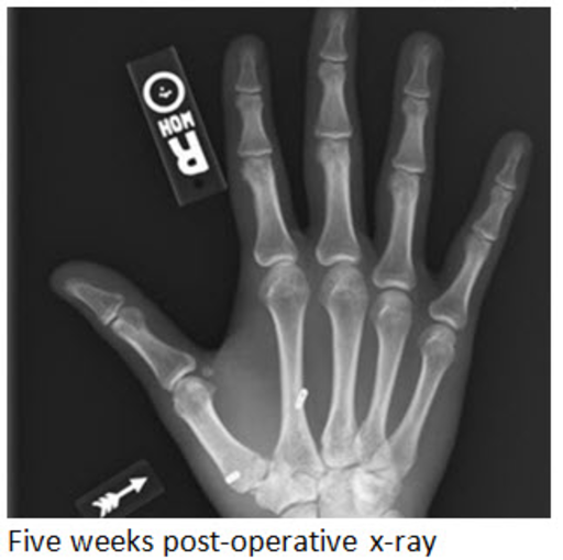 preoperative x-rays