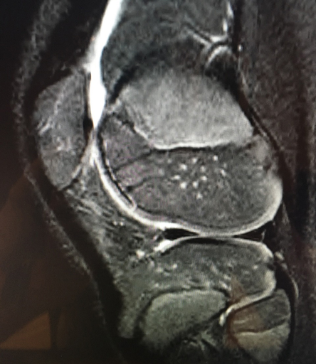 healed articular fragment at 3 months post-op