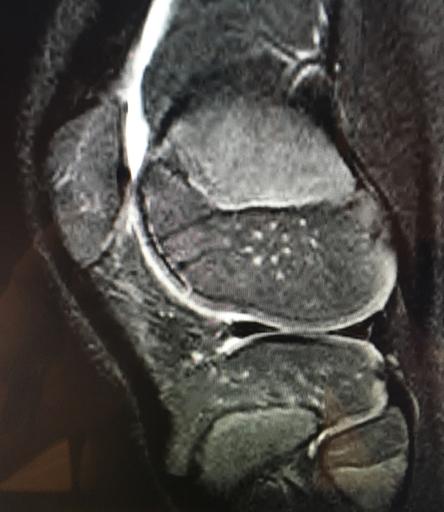 healed articular fragment at 3 months post-op