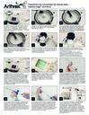 Preparación del concentrado de médula ósea – Sistema Angel™ de Arthrex