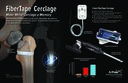 FiberTape® Cerclage Make Metal Cerclage a Memory