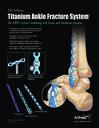 The Arthrex Titanium Ankle Fracture System™