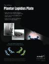 The Arthrex Plantar Lapidus Plate