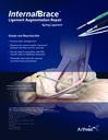 InternalBrace™ Ligament Augmentation Repair - Spring Ligament