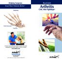 Basal Joint Arthritis - CMC Mini TightRope®