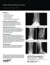 Distal Fibular Nonunion Case