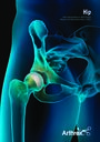 Hip Next Generation in Soft Tissue Repair and Reconstruction 2021