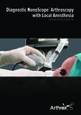 Diagnostic NanoScope™ Arthroscopy with Local Anesthesia