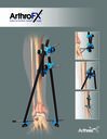ArthroFX™ External Fixation System - Large