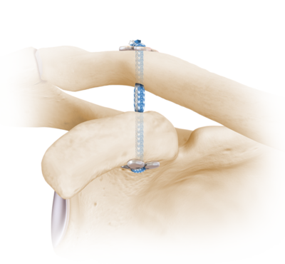 Acromioclavicular joint separation 0 large