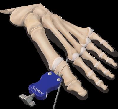 Arthrex - Akin Osteotomy