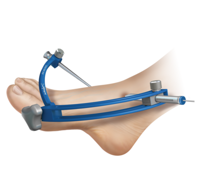 Ankle arthroscopy 0 large