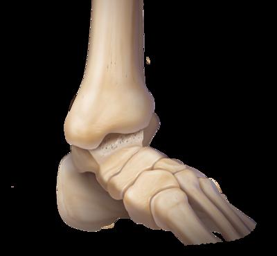 Ankle osteoarthritis 0 large