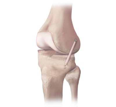 Anterolateral ligament reconstruction 1 large