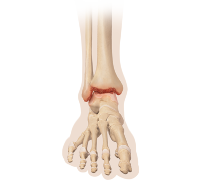Arthritis 0 large