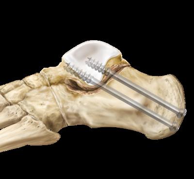 Arthritis subtalar arthrodesis 0 large