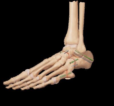 Arthritis triple arthrodesis 0 large