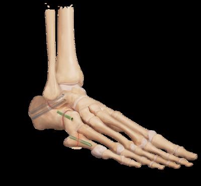 Arthritis triple arthrodesis 1 large