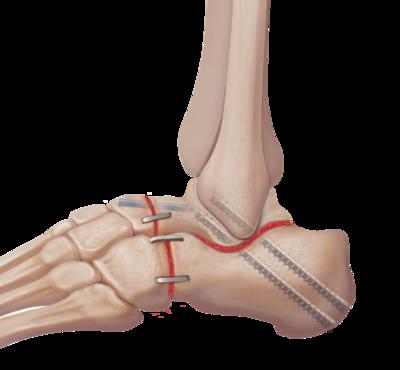Arthritis triple arthrodesis 2 large