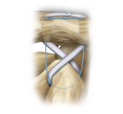Arthrex Chronic Ac Joint Reconstruction Technique