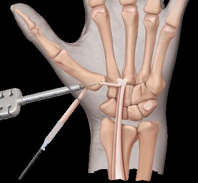 Cmc arthritis 0 large