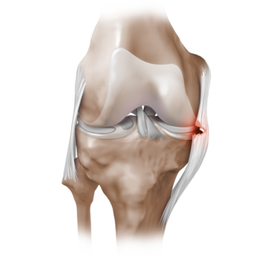 Collateral ligament tear 0 large