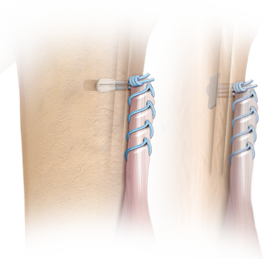 Subpektorale BicepsButton™-Tenodesetechnik