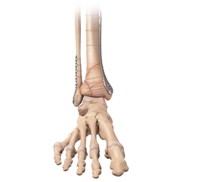 Distal tibia plating system 0 large