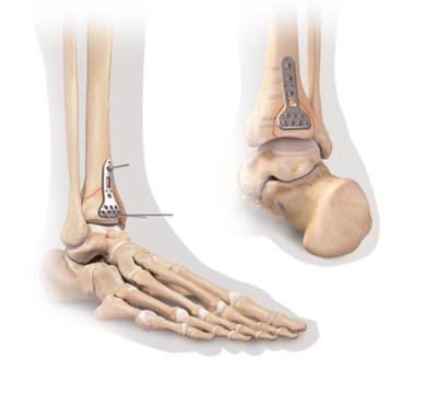 Distal tibia plating system 3 large
