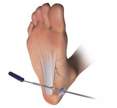 foot pain plantar fasciitis stretches