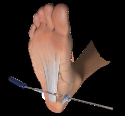 Endoscopic plantar fascia 0 large