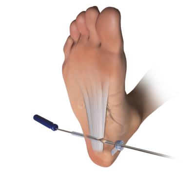 Endoscopic soft tissue release 1 large
