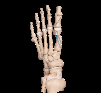 First Metatarsal Osteotomy