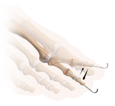 Foot and ankle dynanite 3 large