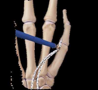 Hand and wrist internalbrace convenience kit 0 large