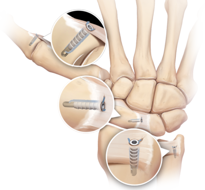 Hand and wrist soft tissue fixation devices 0 large