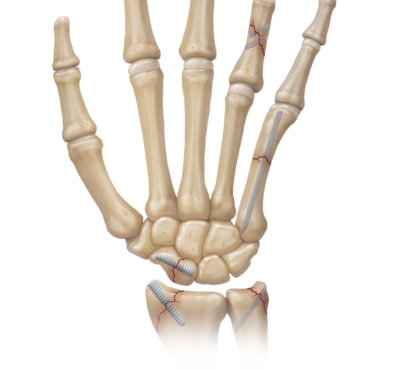 Hand wrist fracture management 0 large