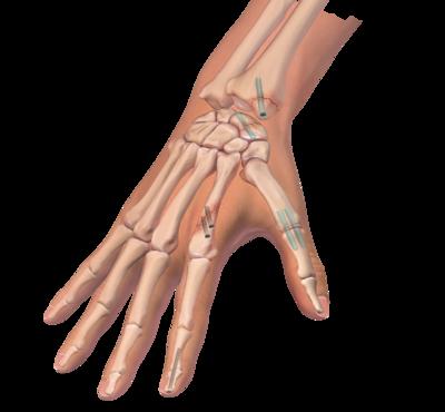 Hand wrist fracture repair 0 large