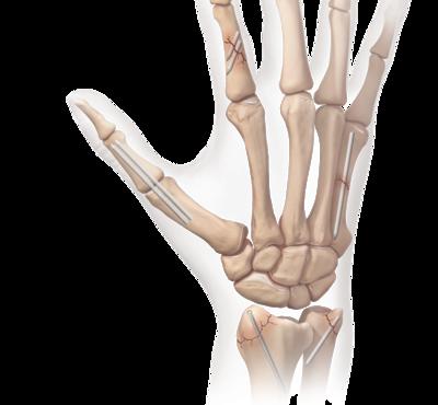 Hand wrist osteoarthritis 0 large