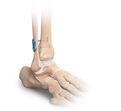 High ankle sprain repair 0 large