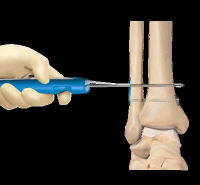 High ankle sprain repair 1 large