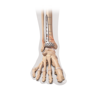 Internal fixation for distal tibia fracture 0 large