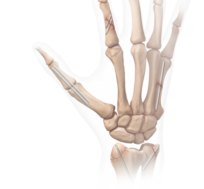 Interphalangeal fusions 0 large