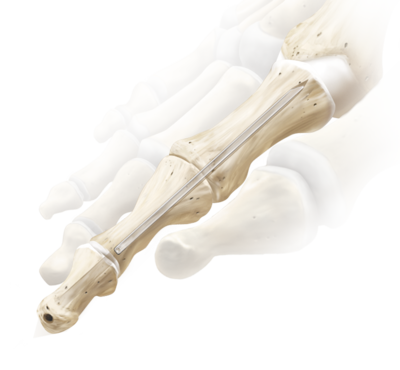 Interphalangeal joint fusion 0 large