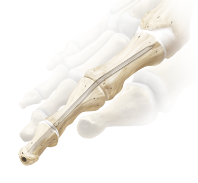 Interphalangeal joint fusion 1 large